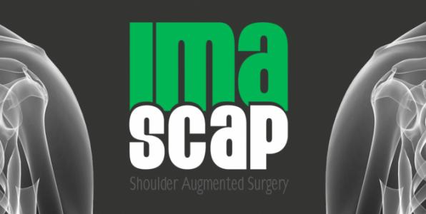 Imascap arthroplastie épaule logiciel planification pré-opératoire