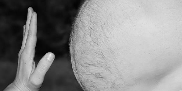 La grossophobie médicale représente un obstacle supplémentaire pour les personnes obèses.