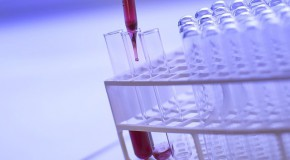 Chlamydia IST infection sexuellement transmissible asymptomatique dépistage