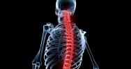 vertèbre imprimante 3D implant colonne vertébrale