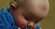 surdité diagnostic enfant bébé handicap nouveau-né implant cochléaire cochlée