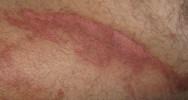 bio-impression 3D brûlure essai phase I phase II peau greffe traitement