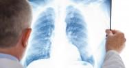 mucoviscidose traitement poumon infection antibiotique greffe don insuffisance respiratoire