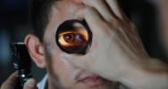 dent œil cécité aveugle vue cornée cristallin